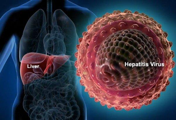 Hepatitə yoluxmamaq üçün hansı qaydaları bilməliyik? - AQS Dental tövsiyə edir